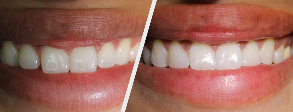 Before and After Cosmetic Resin Bonding